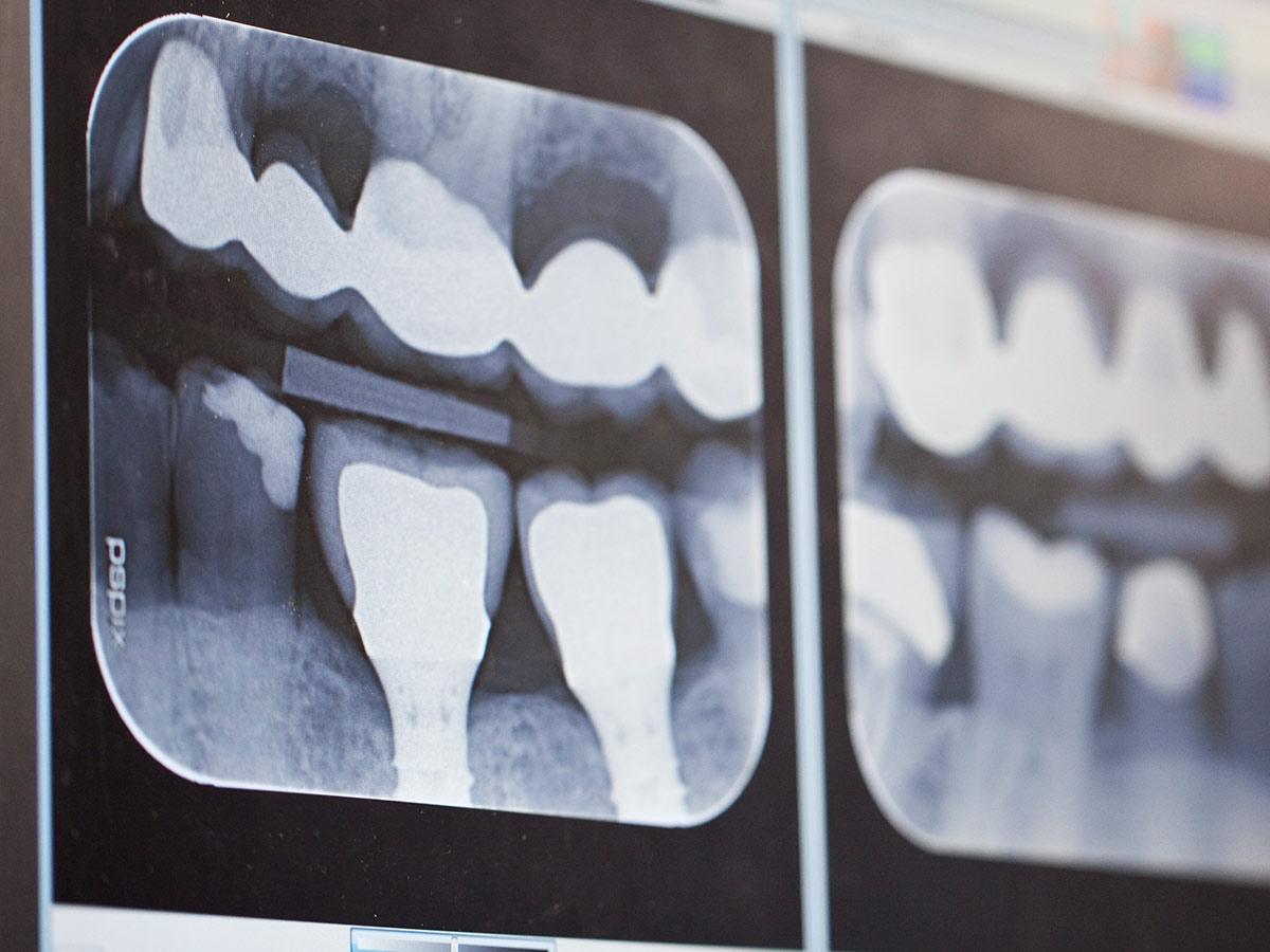 dental implants xray